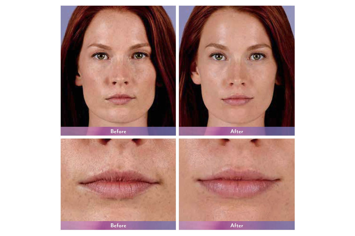 Juvederm ultra xc injectable lip filler before and after