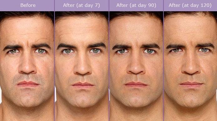 botox cosmetic for men