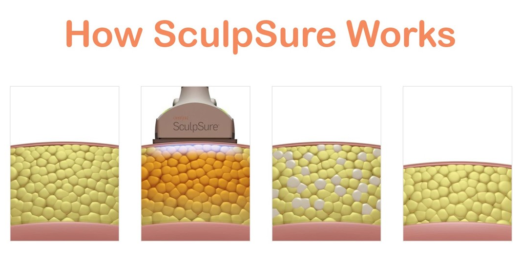 how sculpsure works