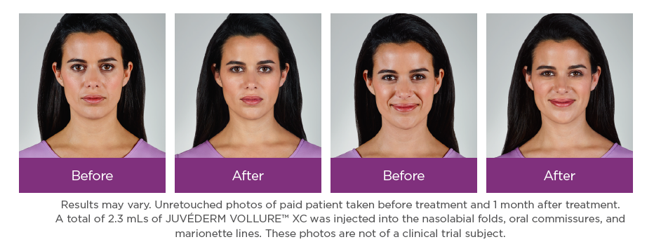 juvederm Vollure filler before and after