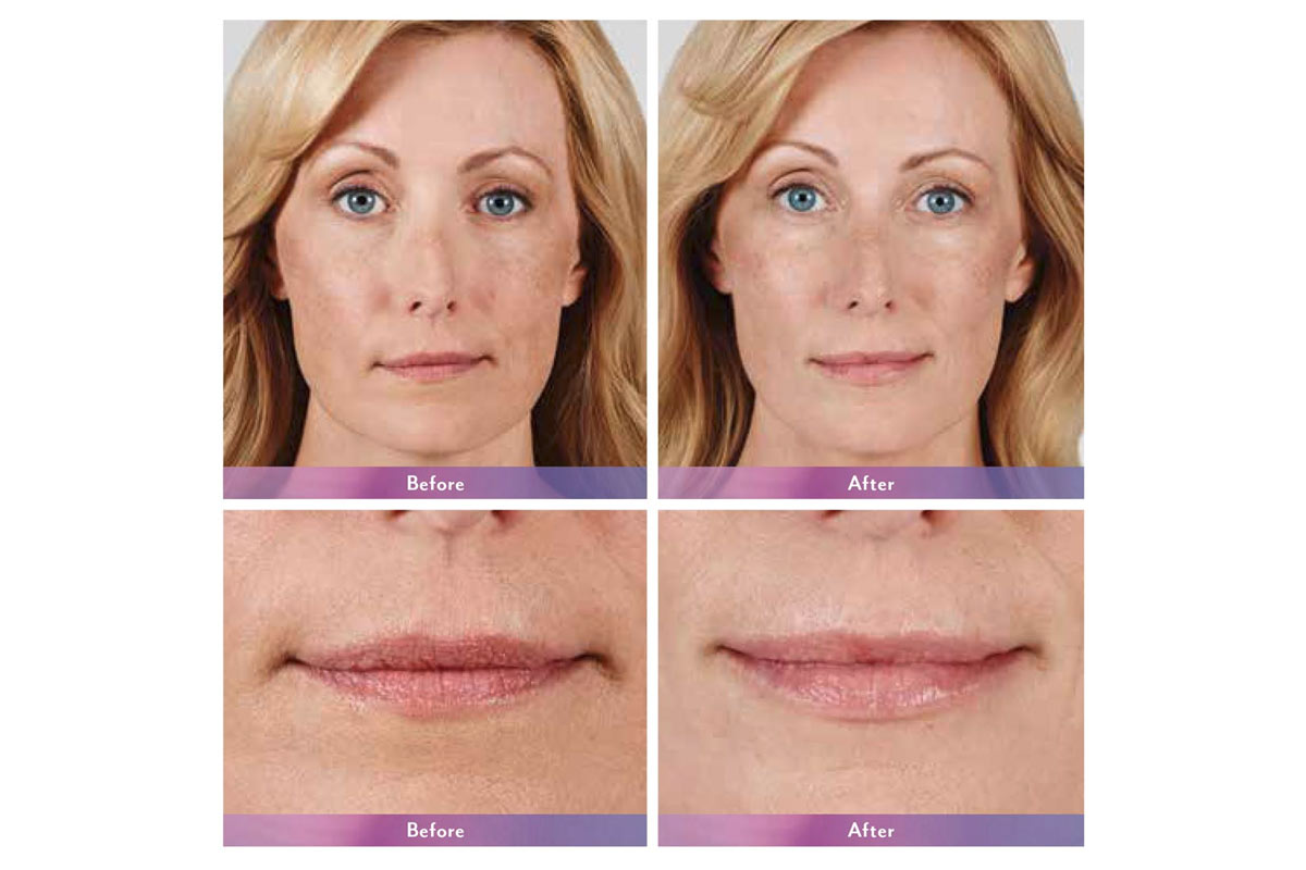 Juvederm ultra xc injectable filler before and after