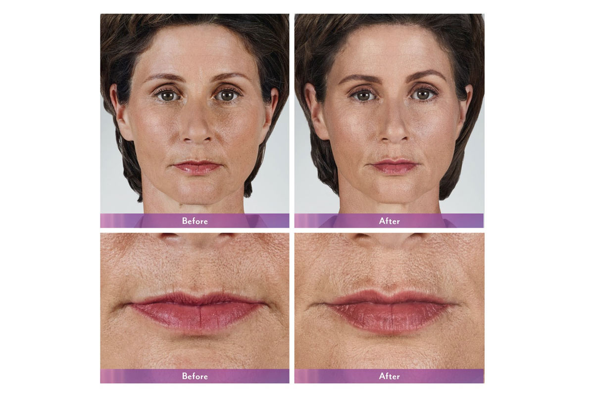 juvederm volbella filler before and after photo