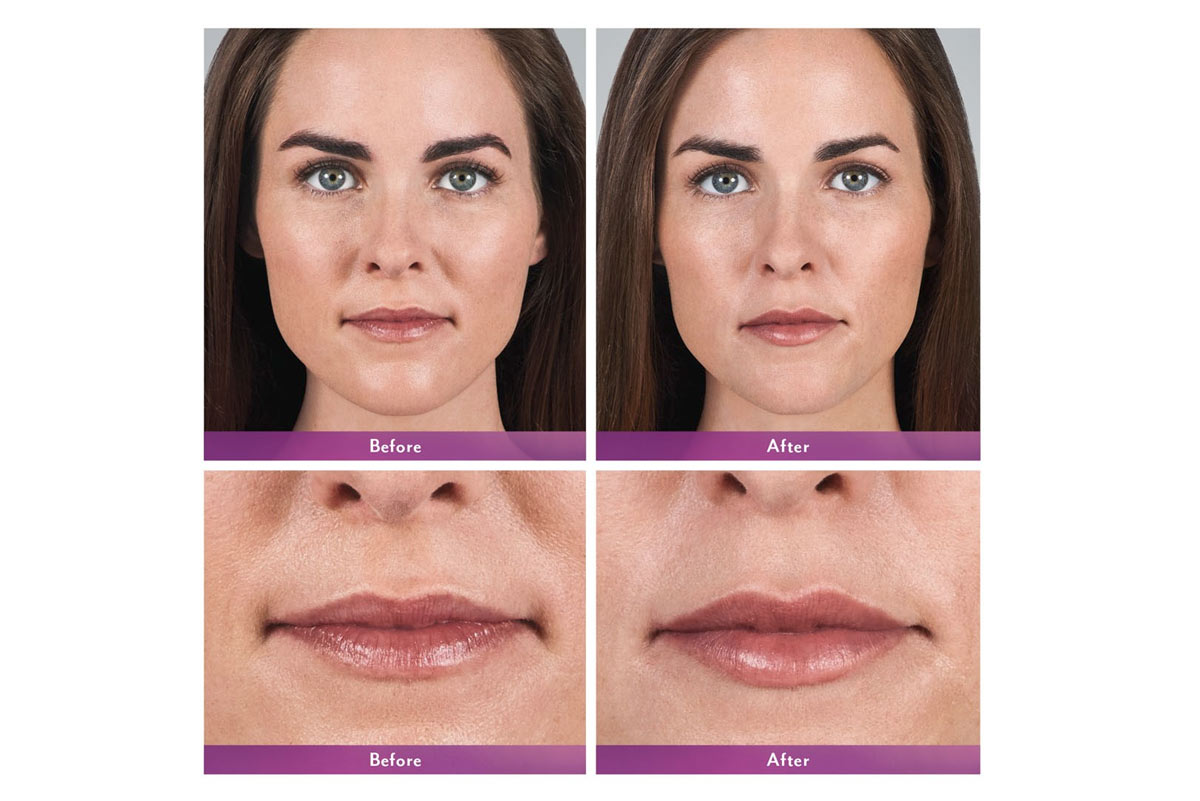 juvederm volbella lip filler before and after photo