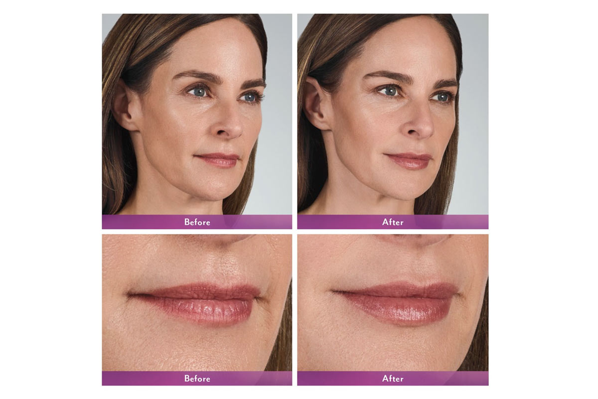 juvederm volbella lip injections before and after photo