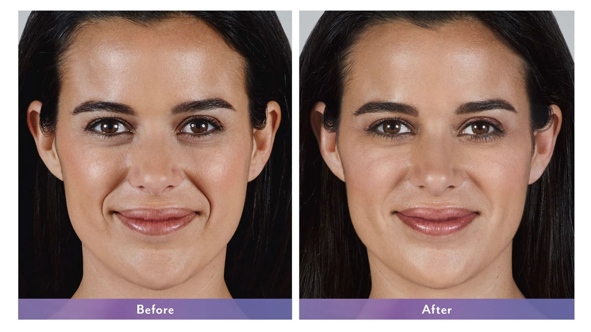 juvederm vollure dermal filler before and after photo
