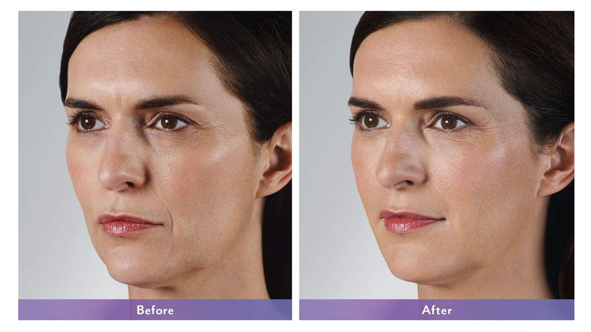 juvederm vollure filler before and after photo