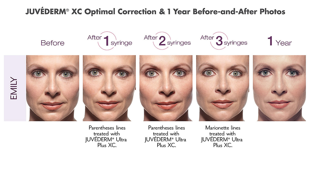 juvederm xc dermal filler before and after photo