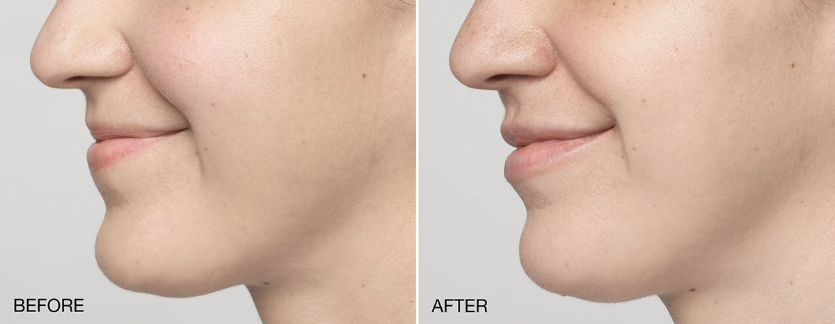 restylane silk injectable lip fillers