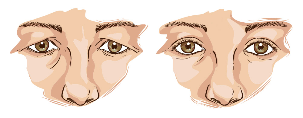 blepharoplasty lethbridge alberta before and after